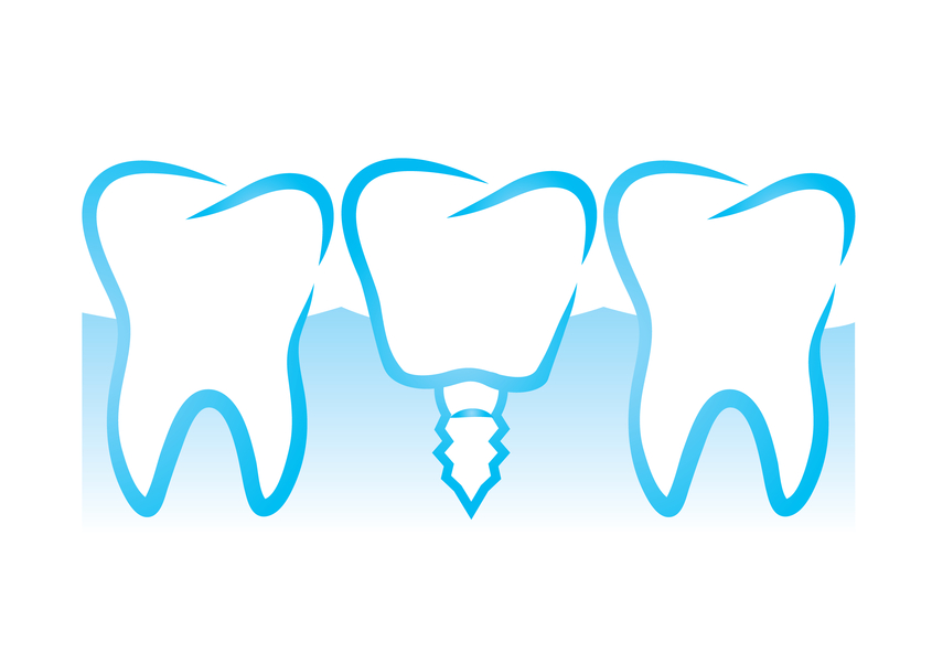 dental implants Rotterdam
